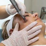 Micro needling, mesotherapie