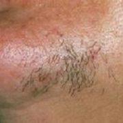 Hypertrichose, overbeharing vrouw, overbeharing, ongewenste haargroei