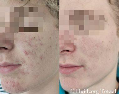 Resultaat acne